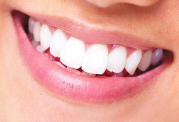 Implant ou couronne – ce qui est mieux dans la dent?
