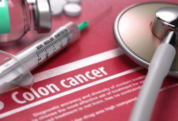 Dlaczego coraz więcej raka jelita grubego rozpoznano u młodych ludzi?