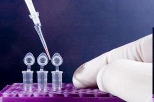Polymerase-Kettenreaktion und seine Art und Umfang der