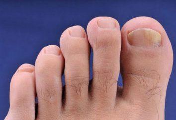 Leczenie paznokci grzybem nadtlenku wodoru. Lekarstwo na grzyba paznokci