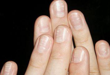 Pourquoi les ongles apparaissent des taches blanches, et ce qu'ils peuvent dire?
