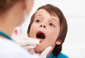 Powiększone migdałki dziecka: przyczyny oraz główne metody leczenia