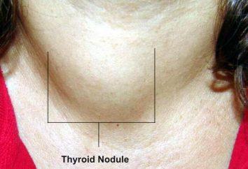 Tossico adenoma tiroideo: cause, sintomi, trattamento