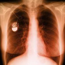 pacemaker: controindicazioni. Linee guida per il paziente con un pacemaker