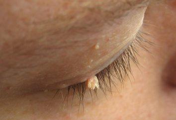 Papillome sur l'oeil. Les causes de papillomes sur les techniques de la paupière et d'enlèvement