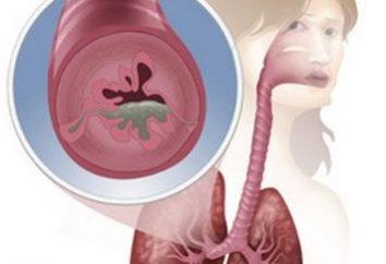 Leczenie astmy. Główne etapy