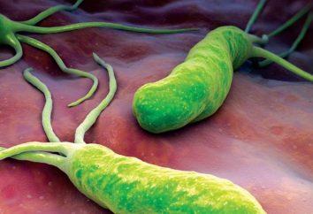 Dove fare breath test Helicobacter. La preparazione e lo svolgimento di ricerche