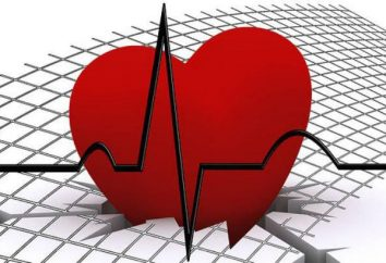 Ciężka arytmia zatokowa: przyczyny, objawy, diagnoza i leczenie