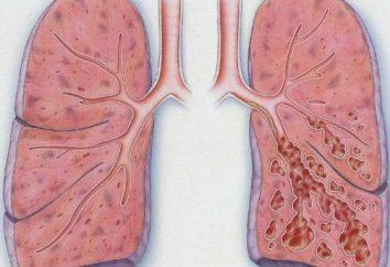 Bronchectasie – qu'est-ce? poumon Bronchectasie