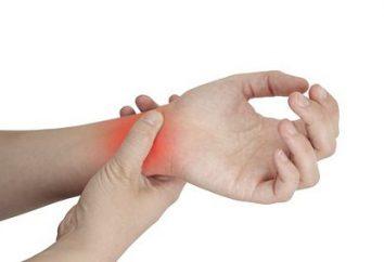 manos esguince de muñeca: síntomas y tratamiento