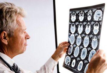 Neurology: objawy mózgowe uszkodzenia mózgu