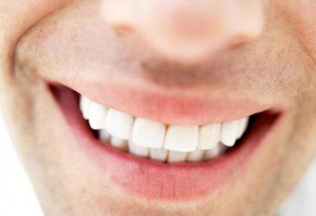 Quanti denti hanno persone? Quanti denti ha una persona? Il numero di denti di bambino in un bambino