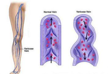 Venotoniki gambe con vene varicose: una descrizione dei prodotti
