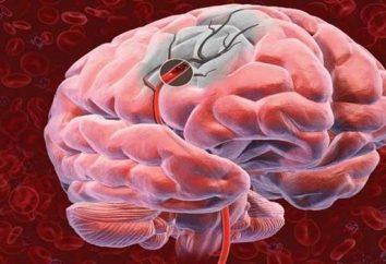 Objawy udaru mózgu, a także pierwszej pomocy.