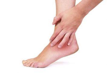 Il dolore alla caviglia: le possibili cause e le cure