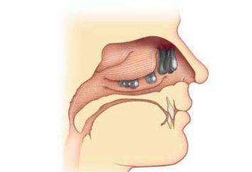 polipy nosa: leczenie bez operacji. polip w nosie Leczenie środków ludowej