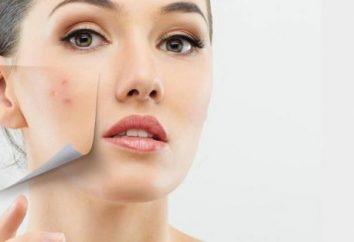 Trądzik na twarzy przez strefy: przyczynach i leczeniu cech