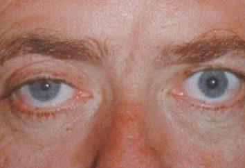 Síndrome de Argyla-Robertson: causas, sinais, tratamento