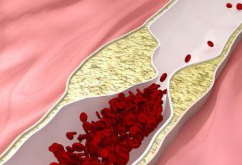 Aterosclerose constritiva: sintomas e tratamento