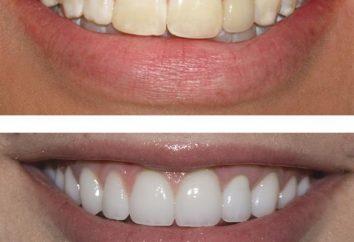 Restauration des dents avant et après. restauration dentaire narrative