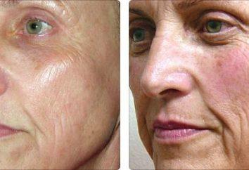 Usuwanie plam barwnikowych na twarzy metod salonowych i domowych