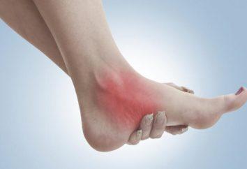 La caviglia è gonfia e fa male: come trattare? Le cause di dolore nell'articolazione della caviglia