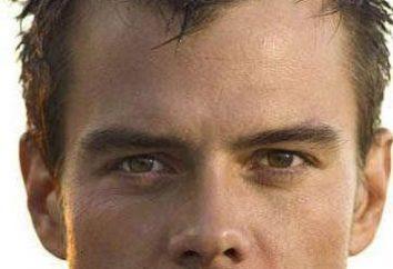 Stirnglatze an der Stirn des Mannes: die Ursachen, vor allem Behandlung und Frisuren