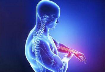 Neuropathie – cette … pathologie du système nerveux: causes, symptômes, traitement, médicaments