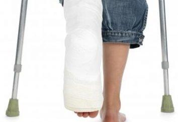 Co jeśli złamana noga?