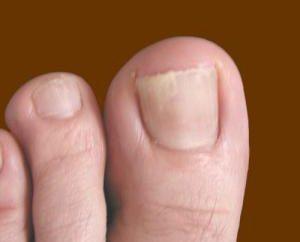 Un trattamento efficace delle unghie dei piedi fungine rimedi popolari
