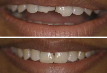 Jak zbudować ząb: metodologii i technologii