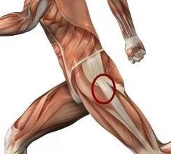 Staw biodrowy: ból, leczenie, choroby towarzyszące
