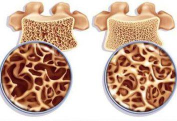 L'ostéoporose: Qu'est-ce qu'il est et comment le combattre?