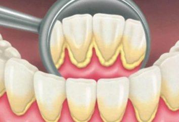 élimination de la plaque: nettoyage des dents professionnelles
