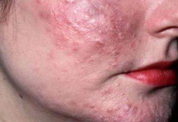 La garrapata debajo de la piel: los signos de su aparición y métodos de tratamiento