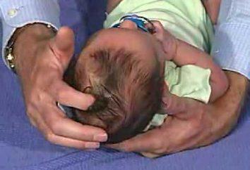 Wenn überwuchert Fontanelle bei Neugeborenen und was zu suchen?