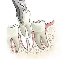 Retrait de la racine de la dent – complexe, mais la procédure la plus indolore