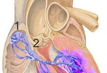 bloc sino-auriculaire: les causes, le traitement. Troubles du rythme cardiaque