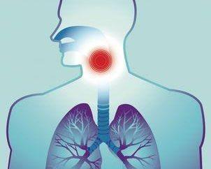 Krtani leczyć? Zapalenie krtani: leczenie antybiotykiem. Niż leczyć zapalenie krtani u dorosłych?
