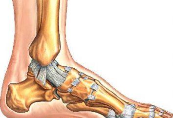 Wie eine Verstauchung Bänder in seinem Bein zu behandeln. Verstauchung Behandlung und eine weitere Erholung
