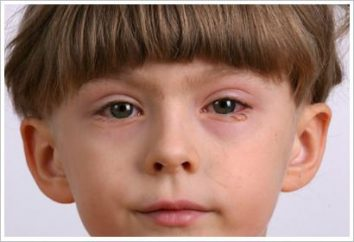 Les yeux rouges chez un enfant: causes, traitement et prévention