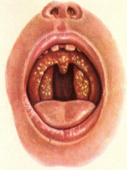 enfant cloque gorge fièvre