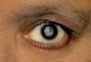 : Cataractes remèdes populaires traitement sans chirurgie, avis. gouttes pour les yeux contre la cataracte