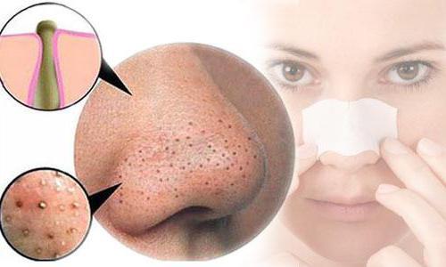 pulire i pori del naso
