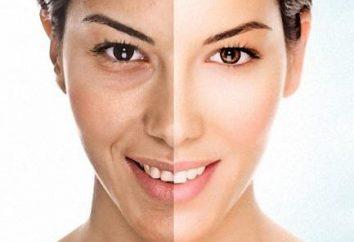 pelures laser: avis. Avant et après le décorticage du laser: une comparaison de la peau
