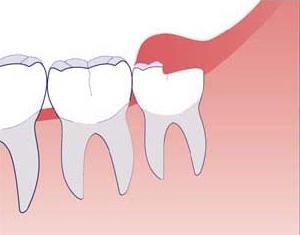 Retrait des dents de sagesse dans la mâchoire inférieure: caractéristiques, conséquences