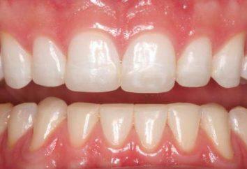 Quelles sont les causes des caries dentaires? Alimentaires et les bactéries qui causent la carie dentaire