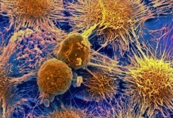 Jak dostać raka i co zrobić, aby zapobiec tej chorobie?