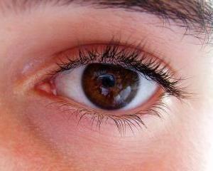 olhos Por coceira? Descrição das razões