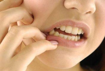 Il dente è tagliato: sintomi e caratteristiche